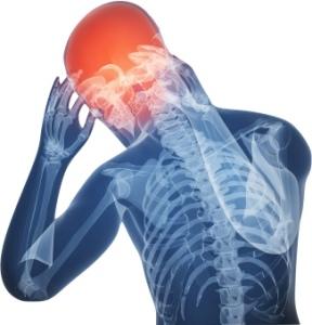 MigraineHeadache
